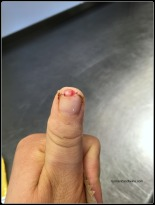 Thumb tip fell off